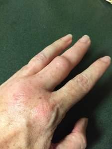 hand sting